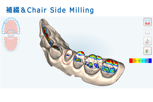 補綴&Chair Side Milling